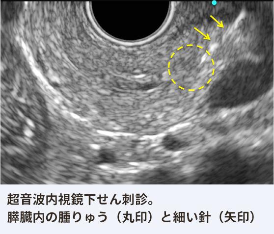 超音波内視鏡下せん刺吸引細胞診。すい臓内の腫りゅう(丸印)に細い針(矢印)を刺して、細胞を採取。