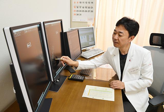 乳がんのレントゲン説明
