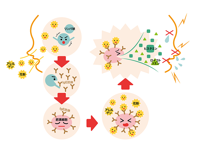 アレルギーのメカニズム