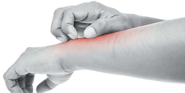 腕の皮膚を掻く男性