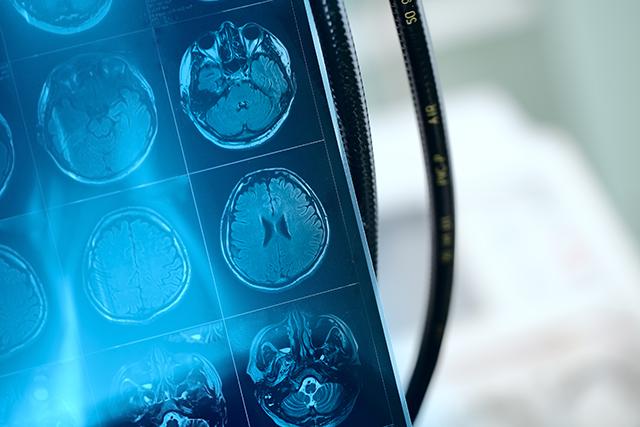 脳卒中の検査